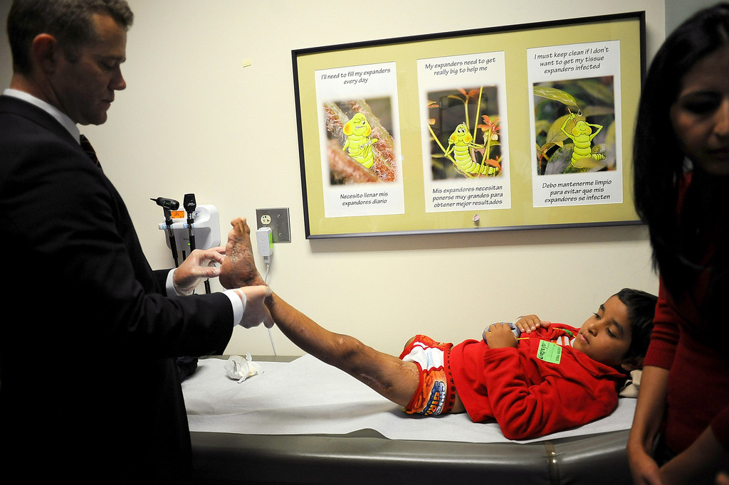 ". Plastic and Reconstructive Surgeon Dr. William Magee examines ""Abdul\'s\"" foot at the Shriners Hospital for Children in Los Angeles, CA December 13, 2013.  Abdul is one of two Afghan children who were injured by bomb and grenade blasts who have been brought to the U.S. by the Los Angeles-based organization Children of War Foundation and will be receive treatment at the hospital.(Andy Holzman/Los Angeles Daily News)"