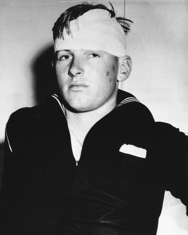 . Donald Jackson, 20-year-old sailor was slashed across the abdomen and forehead by four Zoot-suited youths, June 8, 1943 in Los Angeles, Calif. during a fight between youths and servicemen. Some 50 youths were stripped of their Zoot suits by roving bands of uniformed men the night before. (AP Photo)