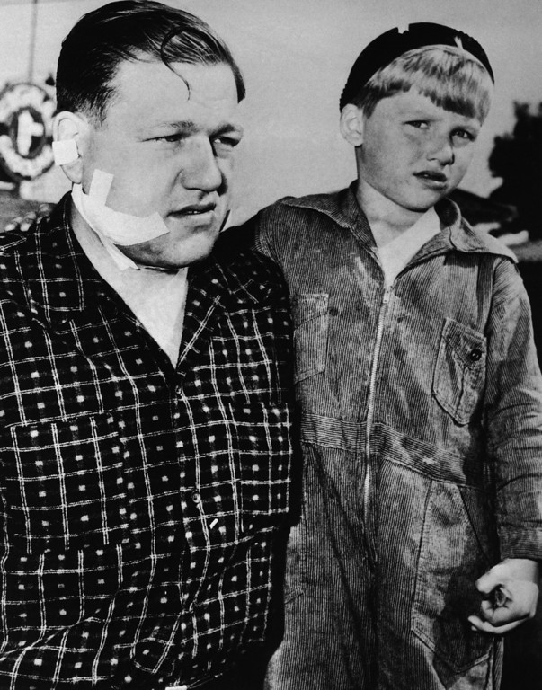 . Russell E. Foss, 32, a Los Angeles, Cal., war worker, told police that two hitch-hiking youths wearing  zoot suits whom he picked up June 10, 1943 dragged him from his car, beat him and slashed him across the face with knife, snipping off a portion of his ear. With Foss in Los Angeles is Douglas, his 5-year old son. (AP Photo)