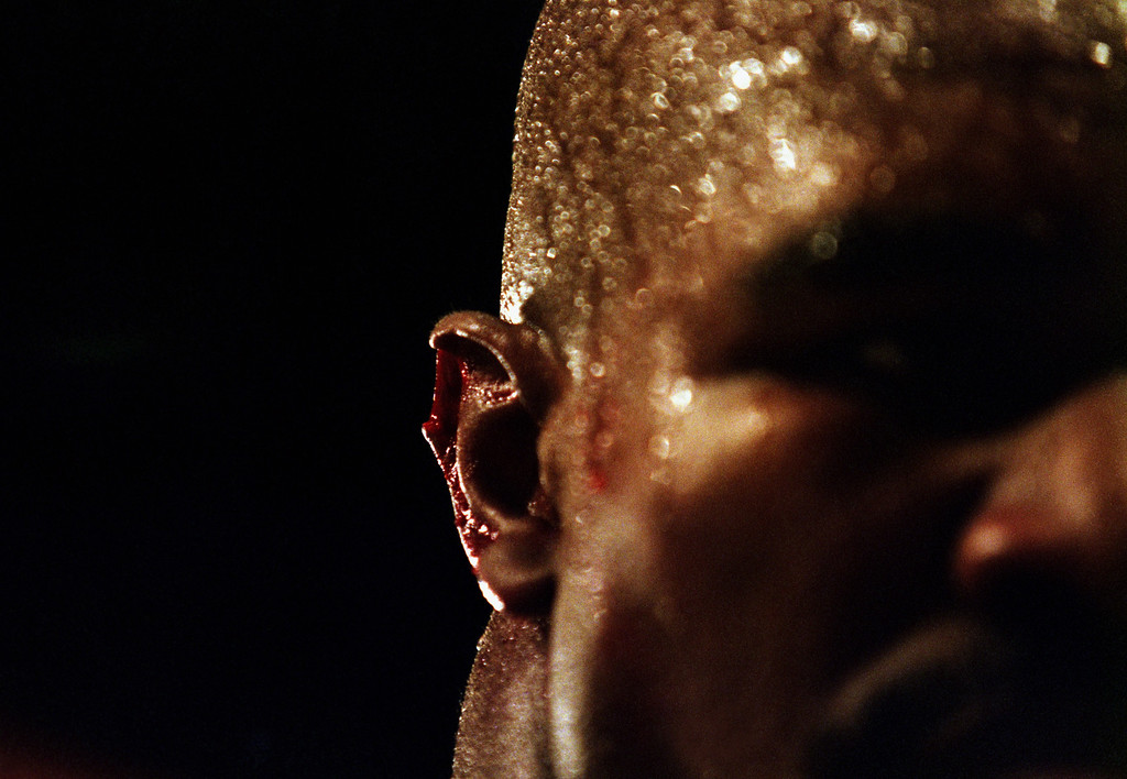 . LAS VEGAS - JUNE 28:  A close-up of the injury to the right ear of Evander Holyfield of the USA after Mike Tyson Of the USA bit off a piece of it in the third round of their World Heavweight title fight on June 28, 1997 at the MGM Grand Garden in Las Vegas, Nevada, USA. Mike Tyson of the USA was disqualified by referee Mills Lane. (Photo by Jed Jacobsohn/Getty Images)