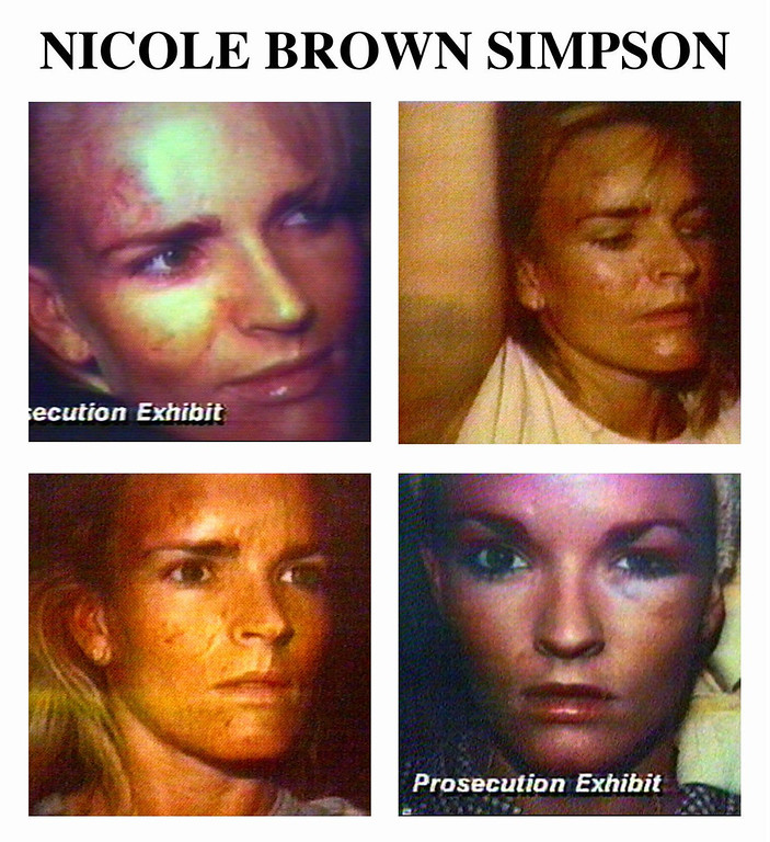 . The following is a series of photos showing a bruised Nicole Brown Simpson presented by the prosecution in the course of the trial. (AP Photo/files)